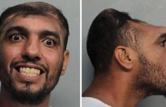 half-headed-man
